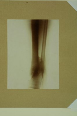 Untitled (X-Ray photograph of Lord Kitchener's Knee)