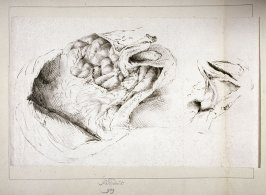 An anatomical drawing of the opened bowels of a child's corpse