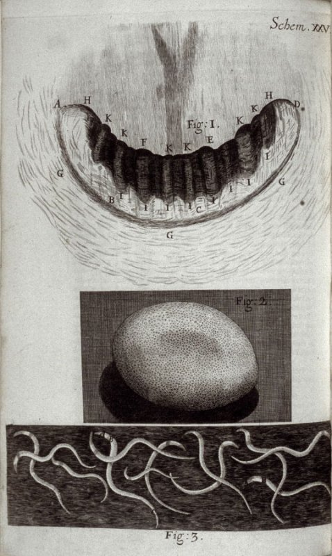 Scheme XXV, twenty-sixth plate, opposite page 181 in the book, Micrographia: or some physiological Descriptions of minute Bodies made by Magnifying Glasses. With Observations and Inquiries thereupon (London: printed by Jo. Martyn and Ja. Allestry, printer